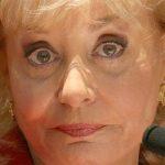 Barbara Walters: Plastic Surgery?