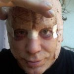 Mickey Rourke Plastic Surgery Before & After