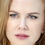 Nicole Kidman Plastic Surgery Before & After