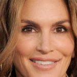 Cindy Crawford Plastic Surgery Before & After