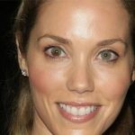 Elizabeth Berkley Plastic Surgery Before & After