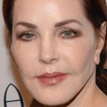 Priscilla Presley Plastic Surgery Gone Wrong