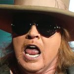 Axl Rose Plastic Surgery Before & After