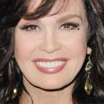Marie Osmond Plastic Surgery Before & After