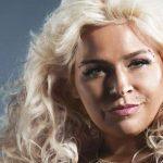 Beth Chapman Plastic Surgery – Boob Job & Liposuction