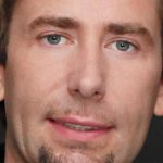 Chad Kroeger Plastic Surgery Before & After