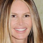 Elle Macpherson Plastic Surgery Before & After