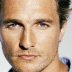 Matthew Mcconaughey Plastic Surgery – Hair Transplantation