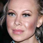 Oksana Baiul Plastic Surgery Before & After