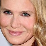 Renee Zellweger Plastic Surgery Before & After