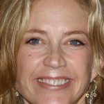 Ally Walker Plastic Surgery Before & After
