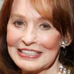 Gloria Vanderbilt Plastic Surgery – Facelift Gone Awry