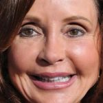 Jackie Zeman Plastic Surgery Before & After
