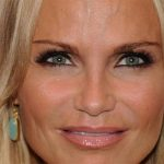 Kristin Chenoweth Plastic Surgery Before & After