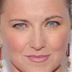 Lucy Lawless Plastic Surgery Before & After