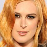 Rumer Willis Plastic Surgery – Chin Reduction Before & After