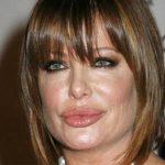 Kelly Lebrock Plastic Surgery – Obvious Lip Augmentation
