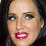 Patti Stanger Plastic Surgery – Facelift & Boob Job