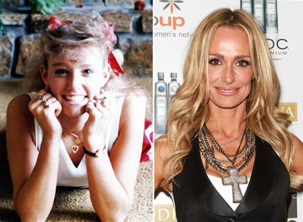 Taylor Armstrong Plastic Surgery Before & After