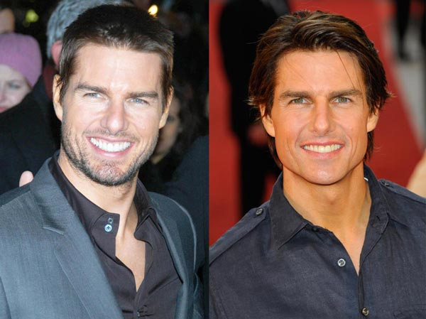 Tom Cruise Plastic Surgery Photo