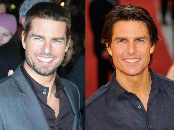 Tom Cruise Plastic Surgery Photo