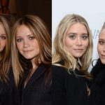 Did Ashley Olsen Really Have Plastic Surgery?