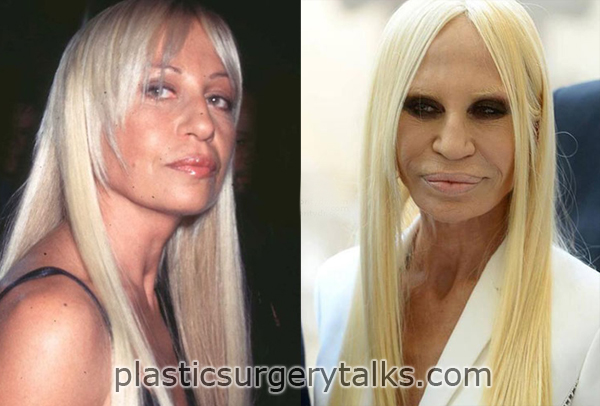 Donatella Versace Cosmetic Surgery