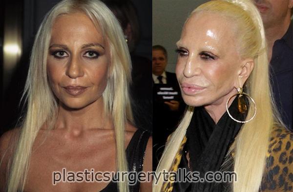 Donatella Versace Plastic Surgery