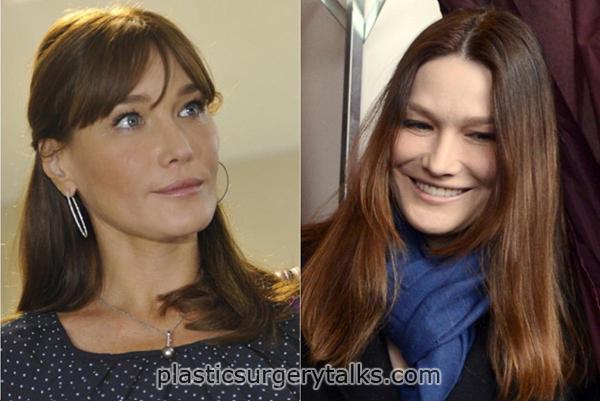 carla bruni plastic surgery