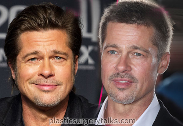 brad pitt plastic surgery face lift