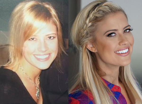 Christina el Moussa Before and After Plastic Surgery