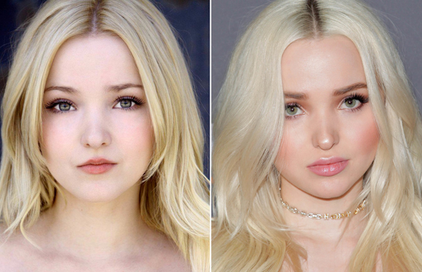 Dove Cameron Before and After Plastic Surgery